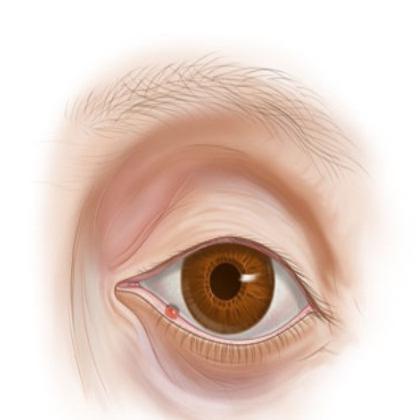 Чим лікують ячмінь на оці. Профілактика ячменю