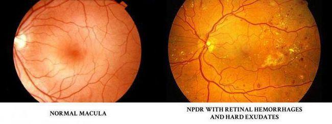 Що таке ретинопатія у хворих на цукровий діабет? Ретинопатія при цукровому діабеті: симптоми, лікування народними засобами