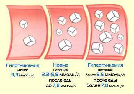 Гіперглікемія: симптоми, вимірювання рівня цукру в крові, лікування і перша допомога