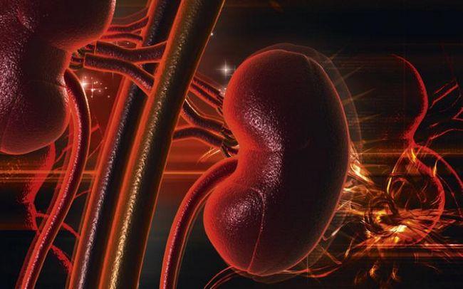 Хронічний пієлонефрит: симптоми і лікування, стадії, дієта, лікування травами