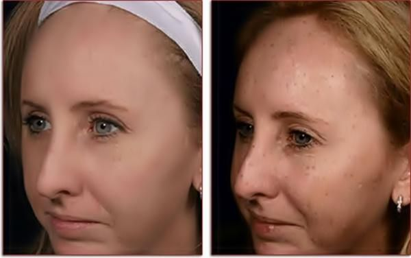 Як вибілювати обличчя в домашніх умовах: рецепти ефективних масок