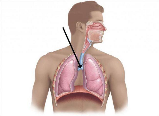 Як виглядає рак трахеї? Симптоми, лікування раку трахеї