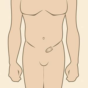 Лікування пахової грижі у чоловіків без операції. Лікування народними засобами