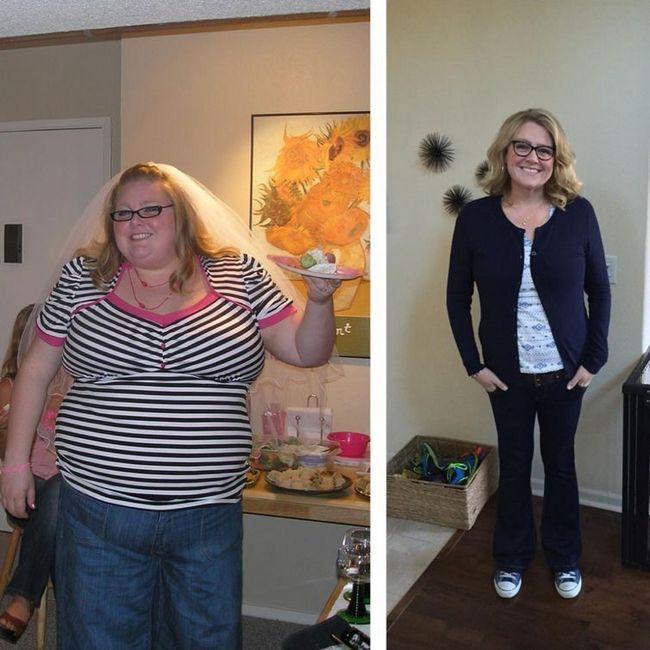 Жінка схудла на 70 кг, перепробувавши безліч різних дієт, але допомогло їй інше