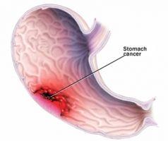 Рак шлунку