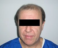 Пересадка волосся (трансплантація волосся)