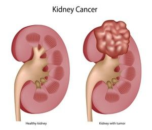 Рак нирки