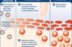 Алергія: як лікувати свербіж