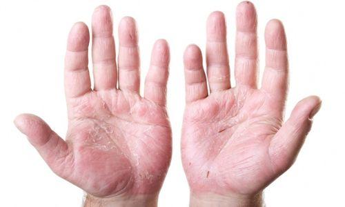 Чим можна лікувати екзему на руках: народні засоби