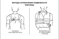 Лікування та ускладнення удару плеча