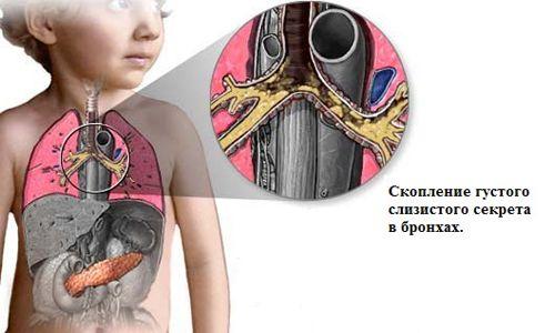 Симптоми і лікування муковісцидозу