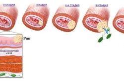 Стадії розвитку раку стравоходу
