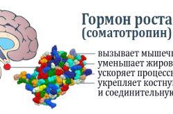 Що таке акромегалія і як лікувати це захворювання?