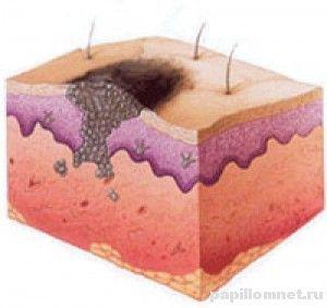 Що таке меланома шкіри і як її вилікувати?