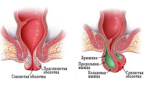 Грижа кишечника у жінок: діагностика і симптоми