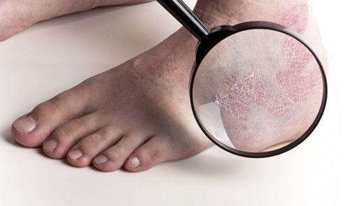 Екзема на ногах: симптоми і лікування
