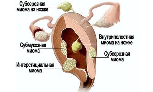 Як лікувати міоматозний вузол на матці?