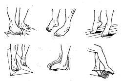 Як лікувати перелом зі зміщенням щиколотки