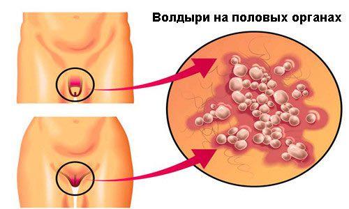 Як лікувати пухирі на статевому члені?