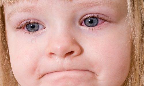 Як протікає алергічний кон`юнктивіт? Лікування у дітей