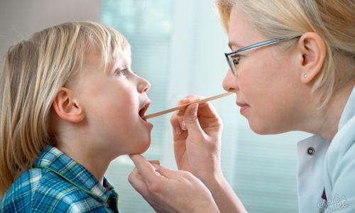 Як протікає фолікулярна ангіна у дітей?