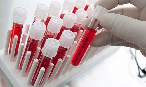 Як розшифровується біохімічний аналіз крові?