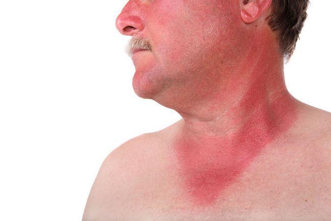 Що являє собою мишача лихоманка: симптоми у чоловіків