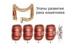 Етапи розвитку раку кишечника