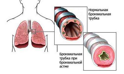 Які симптоми, лікування бронхіальної і нервової астми?