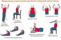 Комплекс вправ при шийно-грудному остеохондрозі