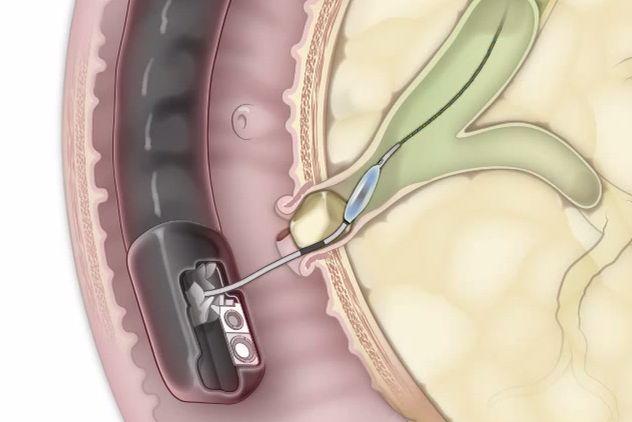 Механізм розвитку болю при панкреатиті і боротьба з нею