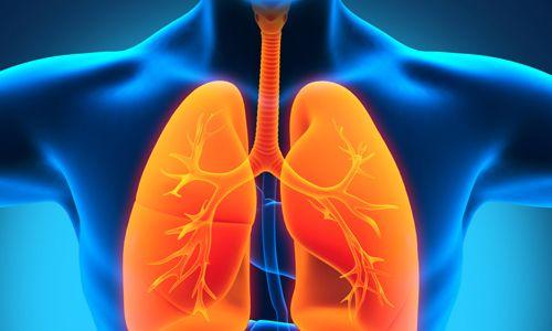 Різновиди, причини і лікування запалення легенів