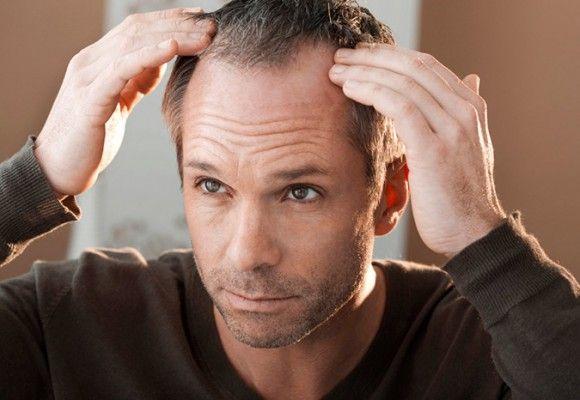 Основні причини, чому стали випадати волосся?