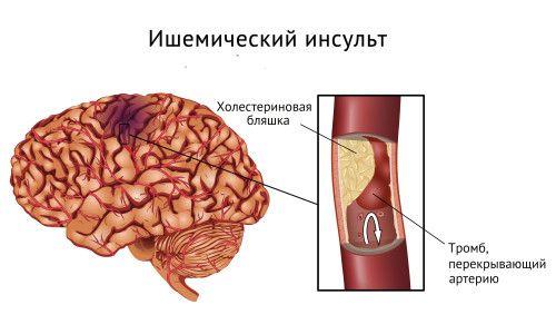 Основні симптоми ішемічного інсульту