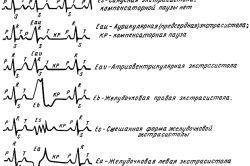 Що собою являє кардіограма серця і як її прочитати