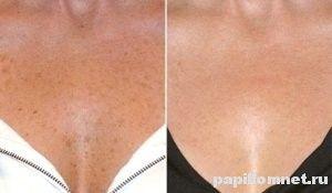 Чому з`являються пігментні плями в області грудей і як їх позбутися?