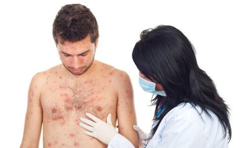 Лишай висівкоподібний: як і чим правильно лікувати