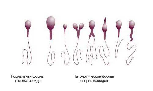 Причини і лікування тератозооспермії