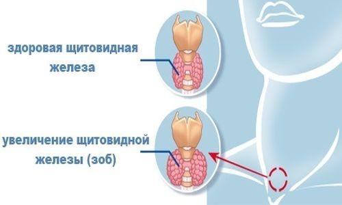 Причини виникнення і лікування вузлового еутиреоїдного зоба