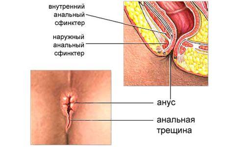 Діагностика та лікування хронічної анальної тріщини