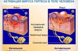 Профілактика і лікування герпесу