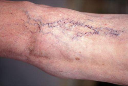 Прояв і лікування варикозного розширення вен малого таза у чоловіків