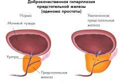 Простанорм при лікуванні хвороб простати: відгуки