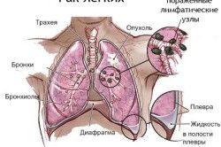 Схема раку легкого