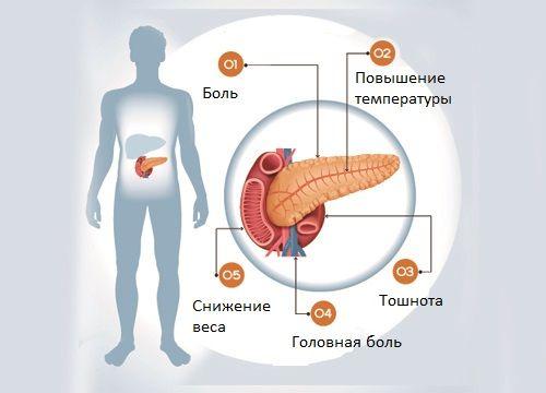 Роль ферментних препаратів при панкреатиті: список