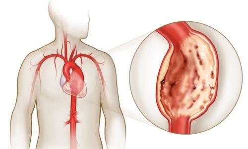 Симптоми і діагностика аневризми аорти