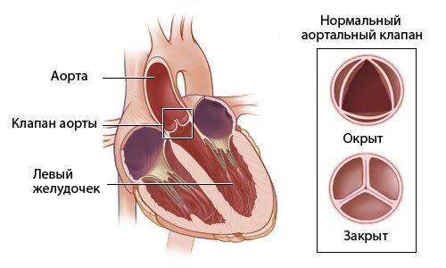 Симптоми і лікування аортального пороку серця