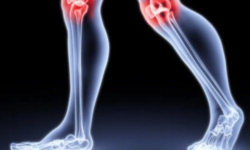 Симптоми і лікування артриту колінного суглоба