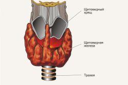 При яких хворобах і чому душить щитовидна залоза