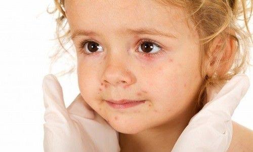 Лікування псоріазу у дітей